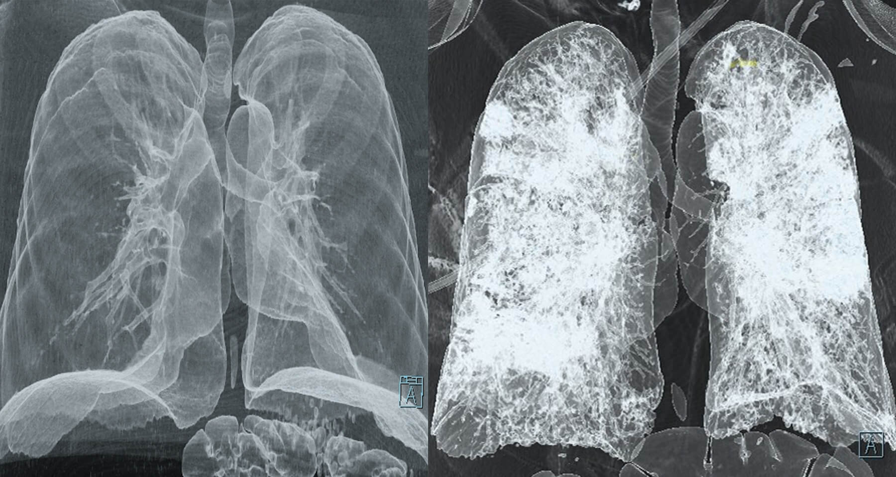 Side-by-side CT scans of lungs. The left hand lungs are healthy, the right hand lungs have covid-19 and show a cloudy overlay.